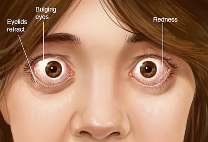 بیماری گریوز چیست؟ تشخیص و درمان