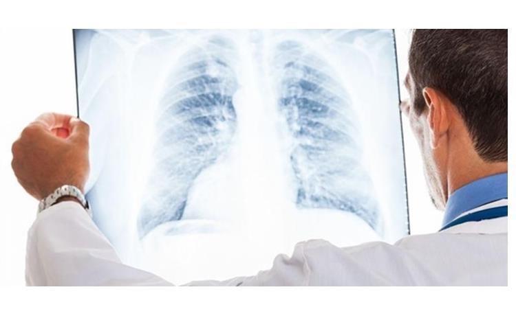 تفاوت های آنفلوانزا و کرونا را بشناسید
